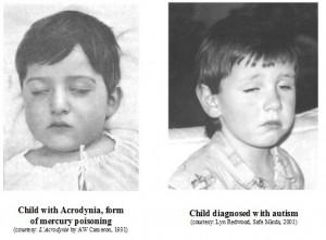 Mercury Poisoning and Autism